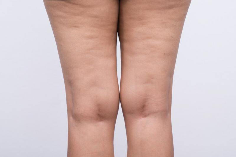 Что купить в аптеке для похудения, тонуса кожи и от целлюлита: краткий список