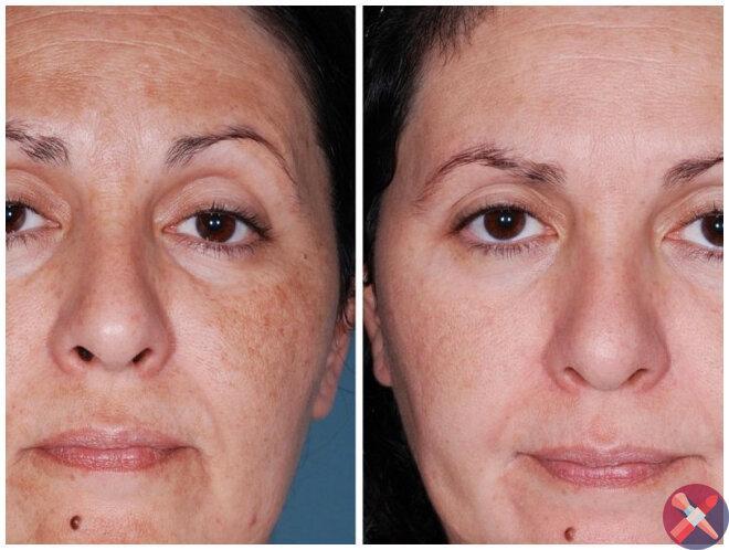 Опытный косметолог посоветовал маме умываться по-особенному. Морщины начали быстро исчезать. Фото до/после
