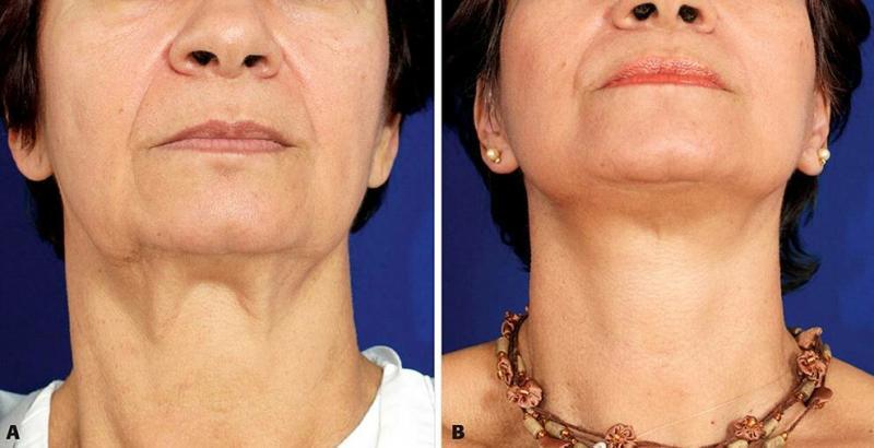 Толстой шеи и обвисшей кожи не будет: 3 упражнения для женщины в 50 лет