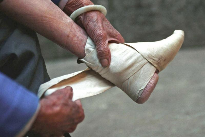 Стоит ли ради красоты укорачивать пальцы на ногах?