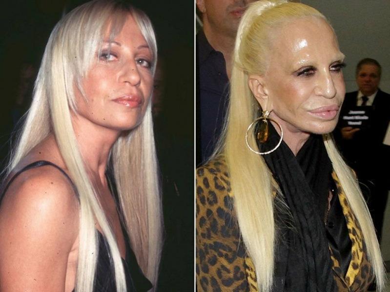 Какой была раньше и как выглядит сейчас Донателла Версаче?